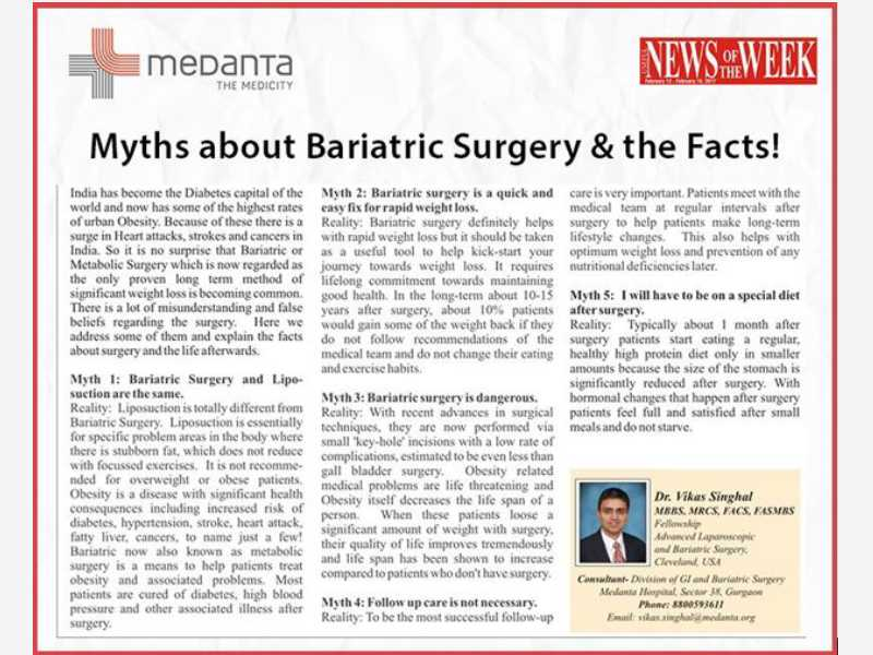 Myths about Bariatric Surgery