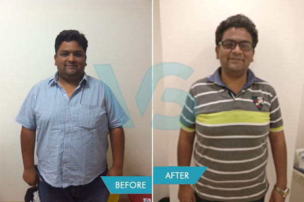 Before and After Gastric Bypass surgery