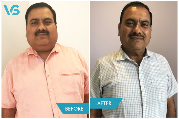 Before and After Weight Loss treatment