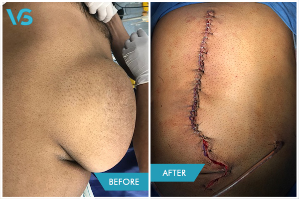 large ventral hernia treatment