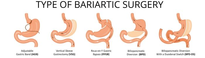 laparoscopic bariatric surgery